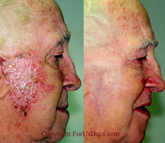 cheek left before radiation therapy right six months after radiation ...
